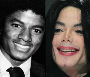Michael Jackson Nose Jobs | Daniel Man MD | Rhinoplasty | Boca Raton, FL