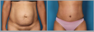 Tummy Tuck Before and After Picture | Daniel Man MD | Abdominoplasty | Boca Raton, FL