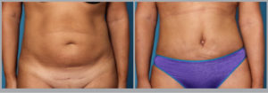 Tummy Tuck Before and After Picture   Daniel Man MD   Abdominoplasty   Boca Raton, FL