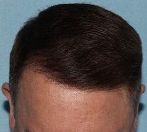 Hair Transplant | Daniel Man MD | SmartGraft | Boca Raton, FL