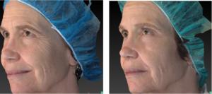 VDM Skin Treatment | Daniel Man MD | Vivace DMMD Neogen | Boca Raton, FL