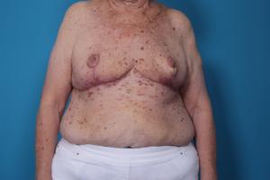 Breast Reduction After Surgery | Daniel Man MD | Reduction Mammoplasty | Boca Raton, FL