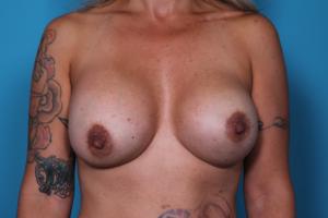 Breast Enhancement | Daniel Man MD | Breast Lift | Boca Raton, FL