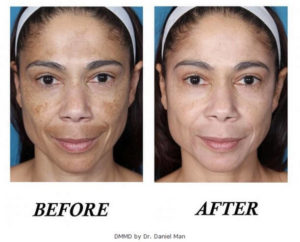 DMMD Before and After Pictures Boca Raton, FL