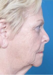 Before & After Lip Lift Results | Daniel Man MD | Fat injections, Facelift Laser and DMMD | Boca Raton, FL